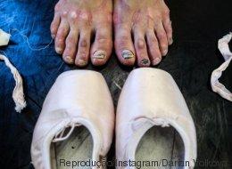 'Toda bailarina tem': 15 fotos surpreendentes mostram os ossos do ofício