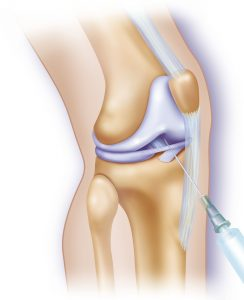Knee Joint Arthrography. Illustration Of The Area In Which A Contrast Substance Is Injected During An Arthrography Procedure. Arthrography Makes It Possible To View The Joint And Peri Articular Structures Which Are Not Made Of Bone And Which Are Therefore Invisible In A Normal X Ray. (Photo By BSIP/UIG Via Getty Images)